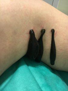 Blutegel-Behandlung